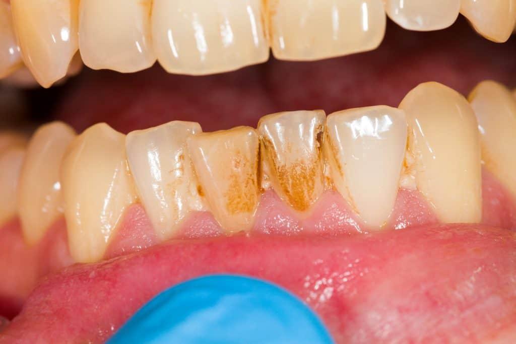 scraping dental plaque on teeth