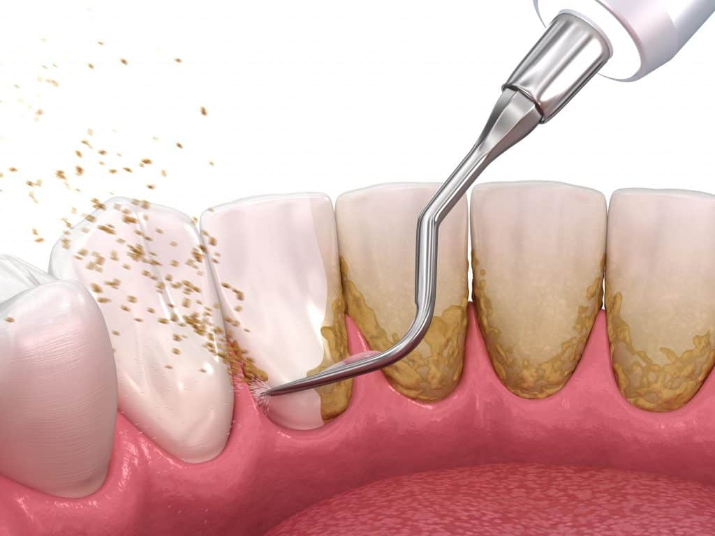 scraping dental plaque off teeth